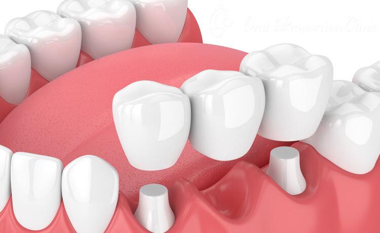 左右の歯を支えに欠損部分を埋める