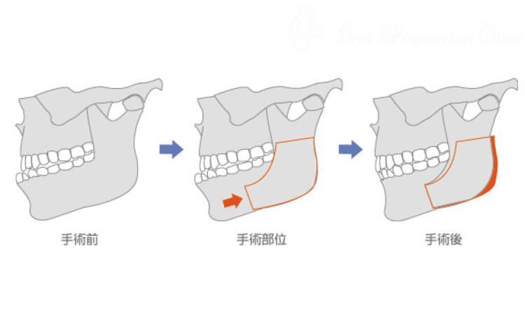 下顎枝矢状分割術