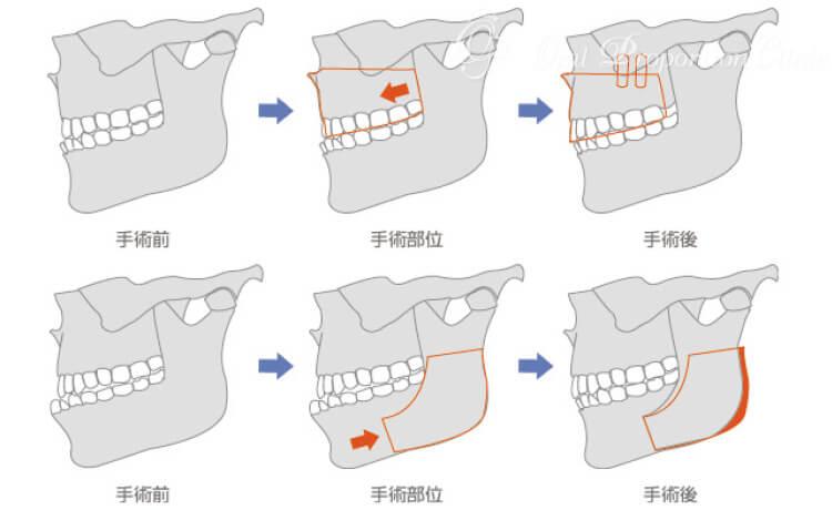 下顎枝矢状分割術+Le FortⅠ型(ルフォーⅠ型)