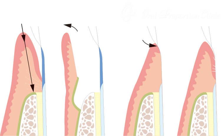 フラップ手術(歯肉剥離掻爬術)
