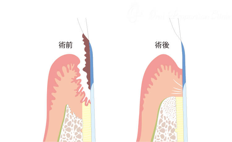 歯周組織再生療法(GTR法)